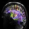 奇特大脑细节效果图 神经纤维排列如网络
